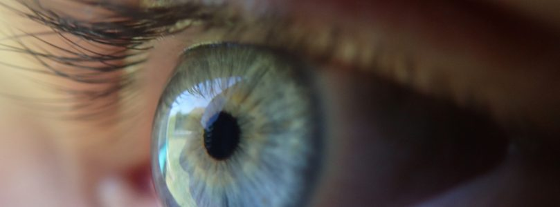Woman had 27 contacts stuck in eye socket
